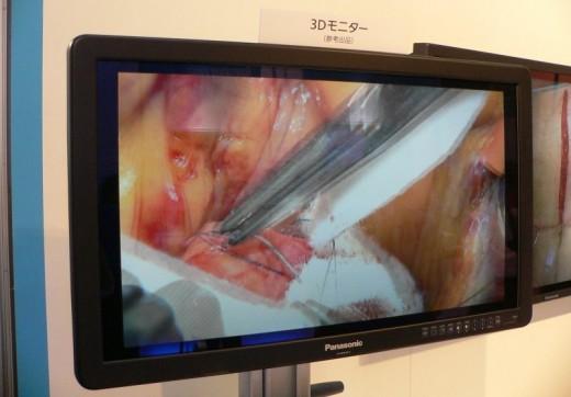 endoskop 3D
