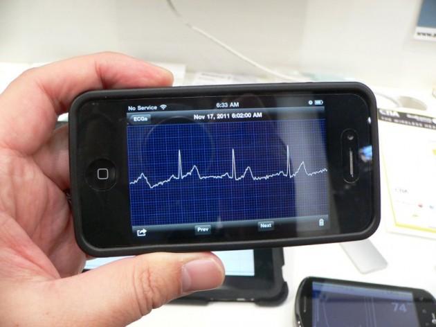 AliveCor elektrokardiogram