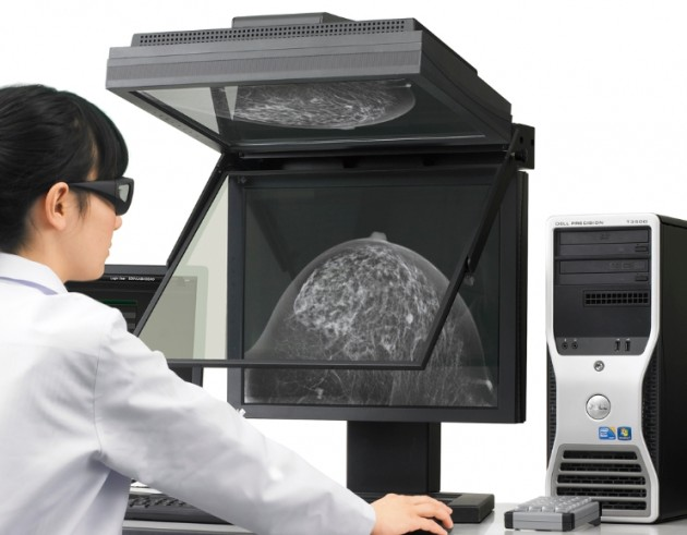 Mammografia w 3D